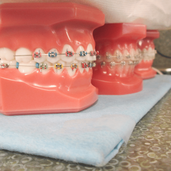 metal braces with color bands