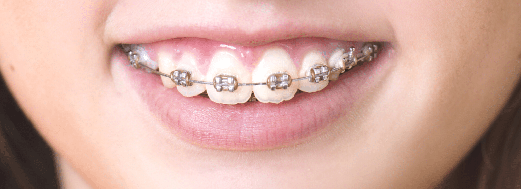 girl with metal braces treatment straighten up orthodontics md