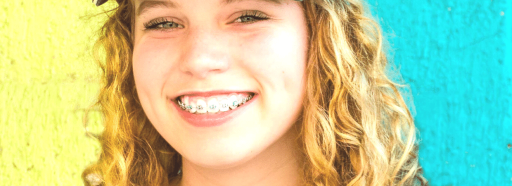 young woman with metal braces colorful treatment at straighten up orthodontics md