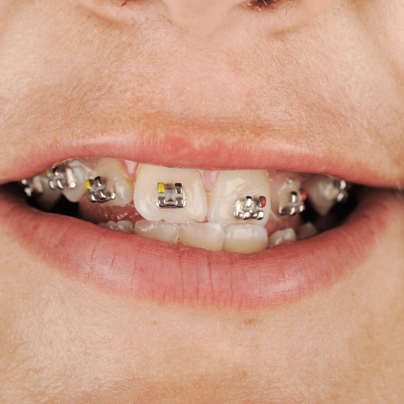young male child with metal braces example for straighten up orthodontics maryland